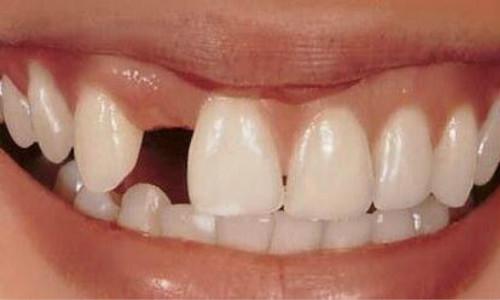 牙齿缺失危害