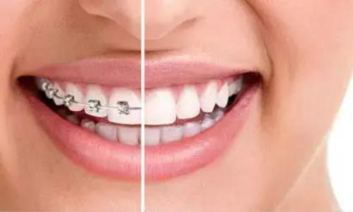 嘉陵区牙齿畸形治疗