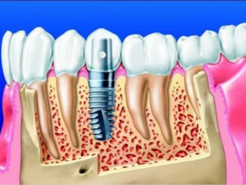 嘉陵区种植牙过程