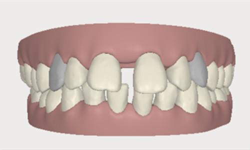 牙齿稀疏矫正误区