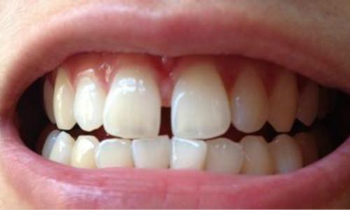 南充牙齿稀疏矫正美容