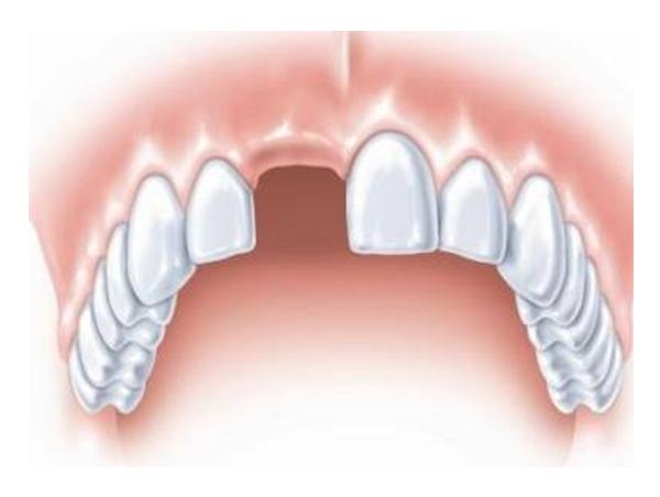 单颗牙齿缺失