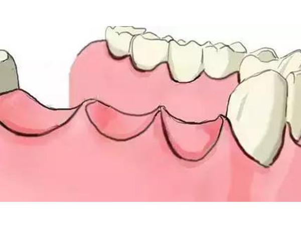 多颗牙齿缺失