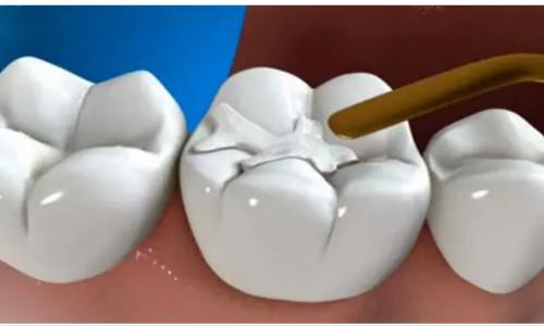 南充牙齿填充医院