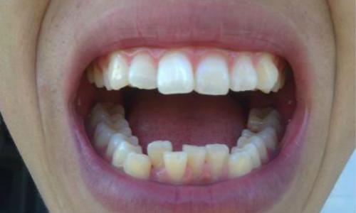 牙齿畸形原因