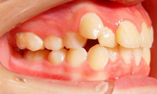牙齿拥挤的原因是一些不良习惯导致,来看看你是否中招了!