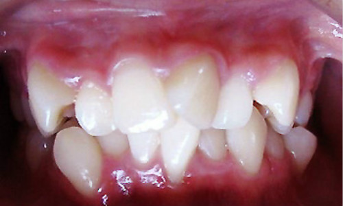 牙齿矫正原因