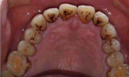 南充牙齿清洗