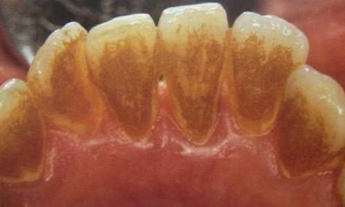 嘉陵区牙齿清洗医院