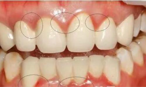 牙周炎的病因有哪些以及诊断牙周炎的方法解决!