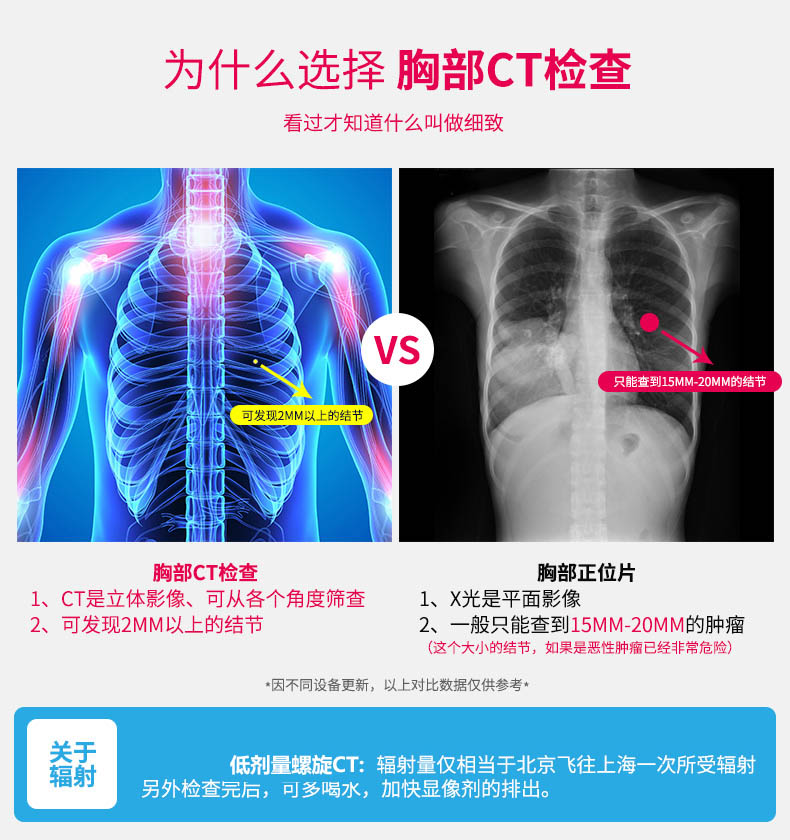 胸部CT检查