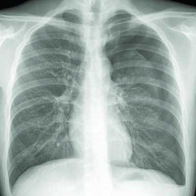 气胸疾病检查