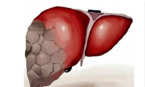 南充肝功能体检