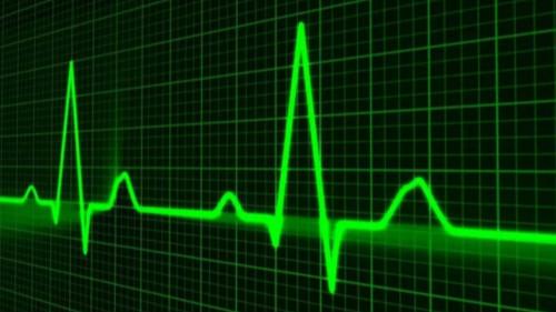 心电图体检注意事项