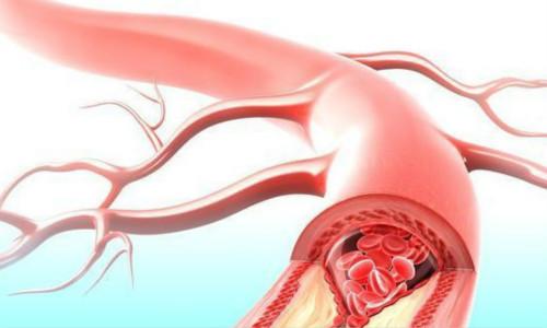 动脉硬化体检