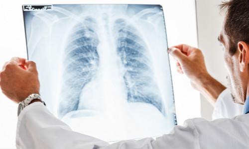 南充美年大肺部体检
