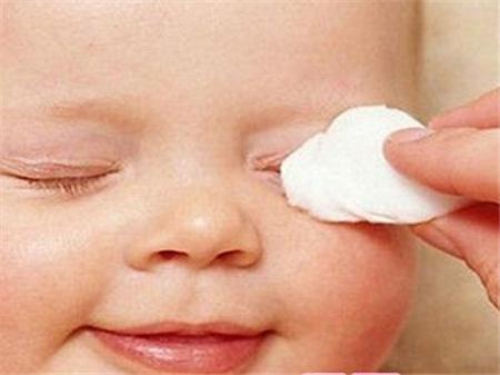 宝宝有眼屎