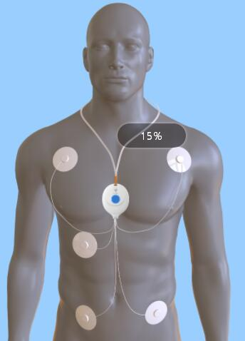 医疗仪器-心电仪器