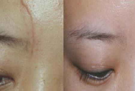 正确使用面膜让面部疤痕消失的方法靠谱吗