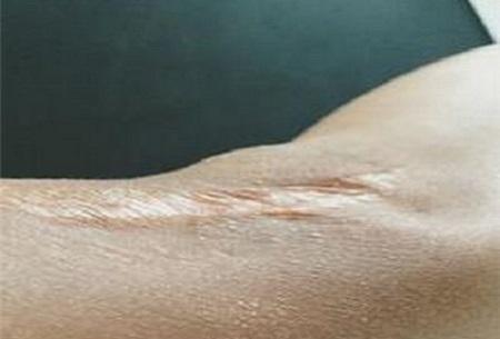 小时候的抓伤疤痕现在的修复难度会很大吗