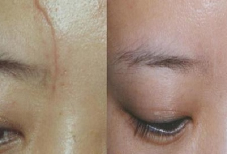 为避免脸部外伤留下疤痕我们应该注意的一系列问题
