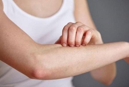 秋季出现皮肤瘙痒跟天气气候干燥密切相关,应该提前预防