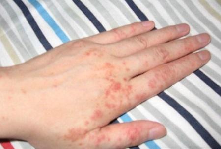预防皮肤病有技巧,尽量避免外界刺激