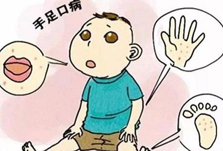 手足口病的特征是怎样的?应该如何应付?
