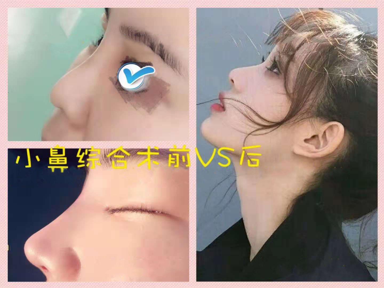 隆鼻—假体鼻综合