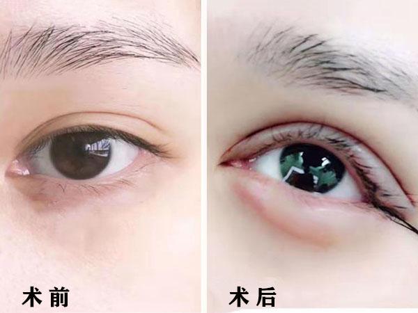 韩式精切双眼皮