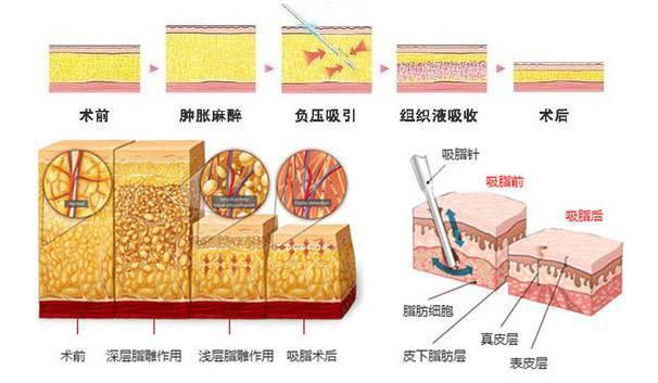 美莱多维立体吸脂过程