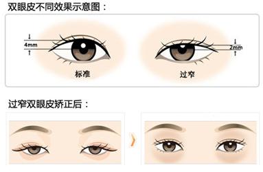 兰州双眼皮修复手术
