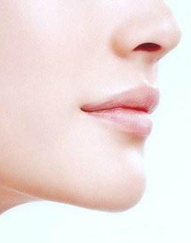 为美丽添加风采,垫下巴手术后会不会影响面部表情