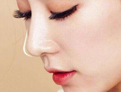 隆鼻整形手术如何做才好 具体适宜人群有哪些