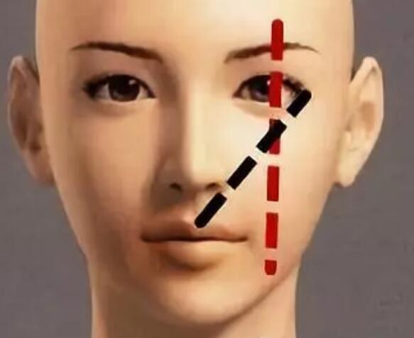 隆鼻这一项技术在整形美容的地位