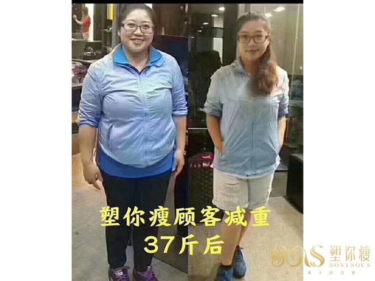 塑你瘦瘦身成功案例-李女士