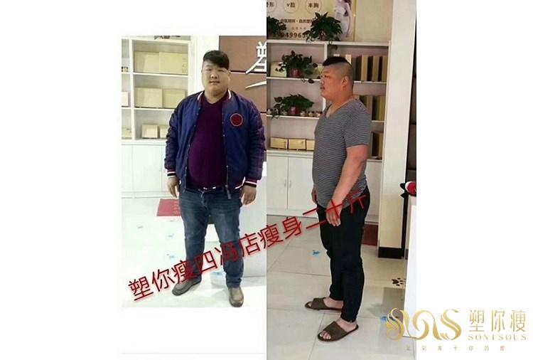 塑你瘦瘦身成功案例-刘先生