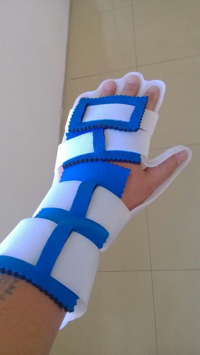 手休息位固定矫形器1