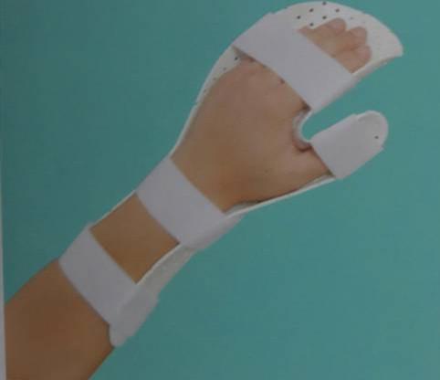 手休息位固定矫形器