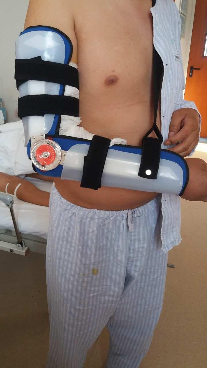 可调肘关节矫形器