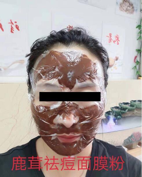 伊拉里鹿茸祛痘面膜粉使用说明