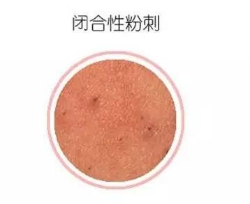 下巴长了闭口粉刺,怎么去除?使用伊拉里祛痘面膜粉可以去掉吗?