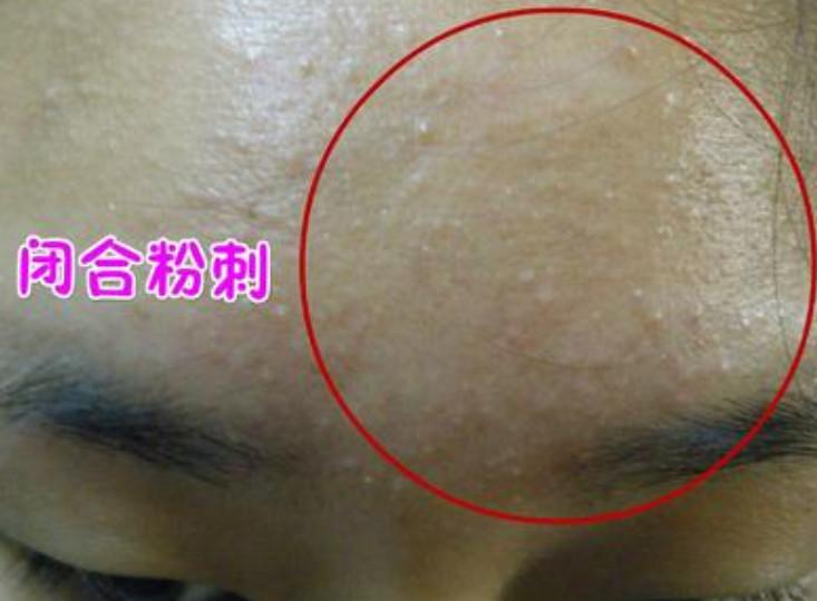 脸上的闭口痘痘如何快速消掉?有什么妙招呢?