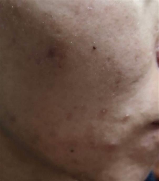 伊拉里美颜靓肤面膜粉的大作用,你了解吗?