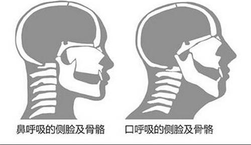 你注意用哪个部位呼吸吗?告诉你口呼吸的危害,至everyone!