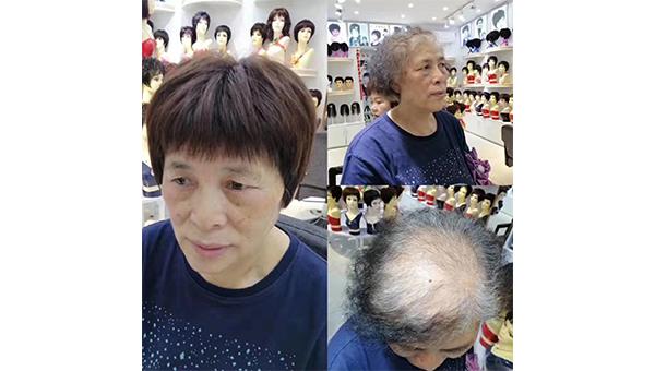 成都锦江净居寺店,刘女士,头发稀少增密