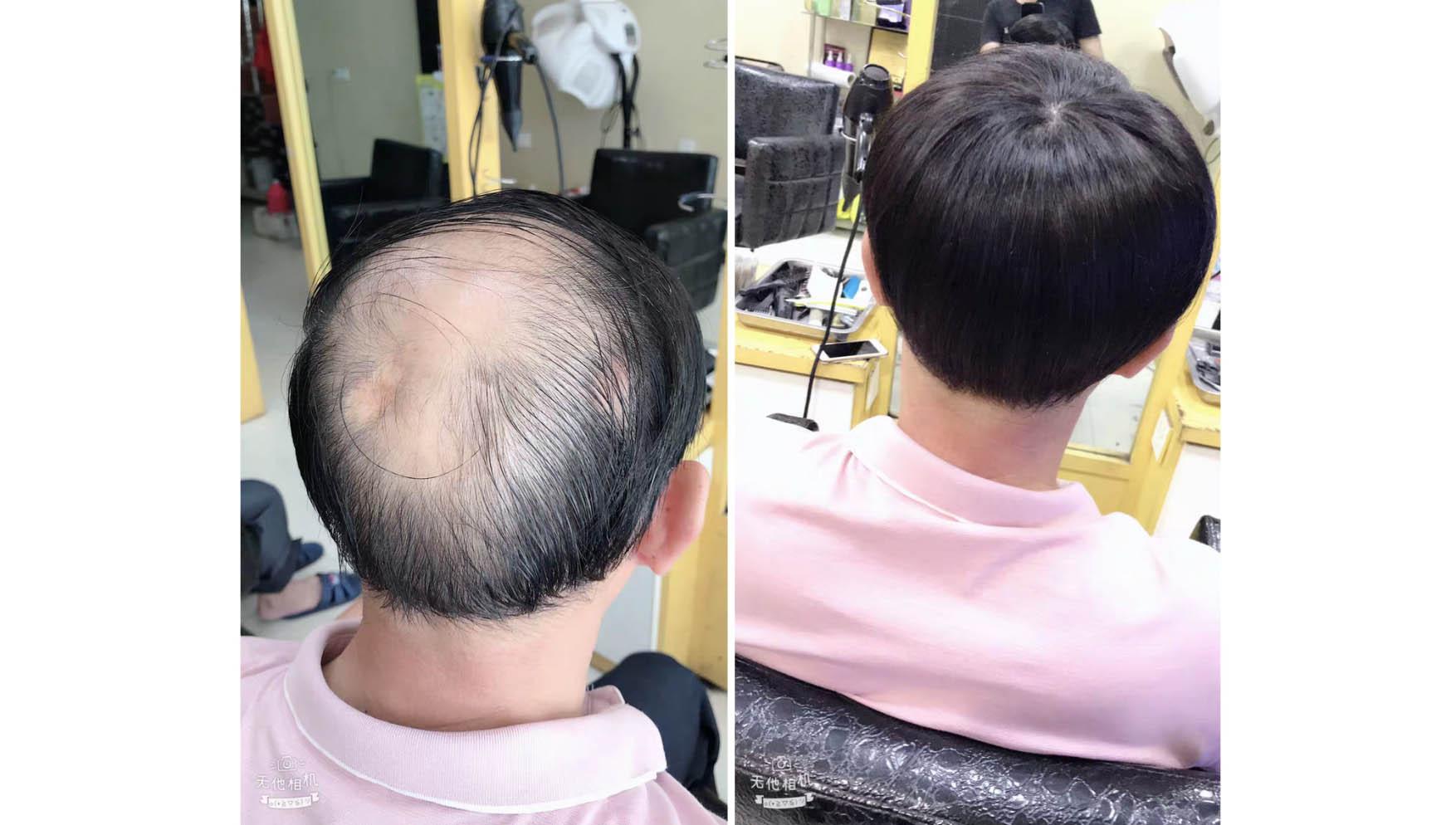 成都抚琴店,陈先生,斑秃增发
