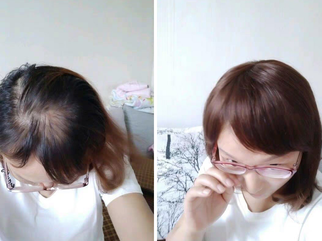 成都增发补发-遗传性脱发