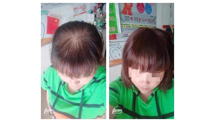 成都大石店,于女士,头发稀少增发