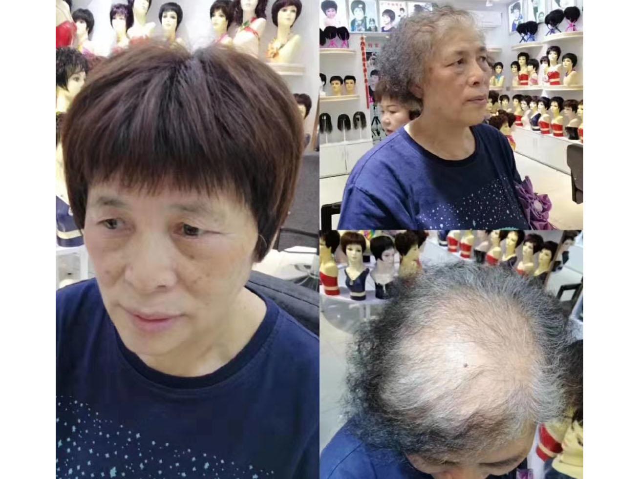 成都假发-头发稀少